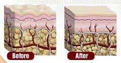Strengthen Your Skin