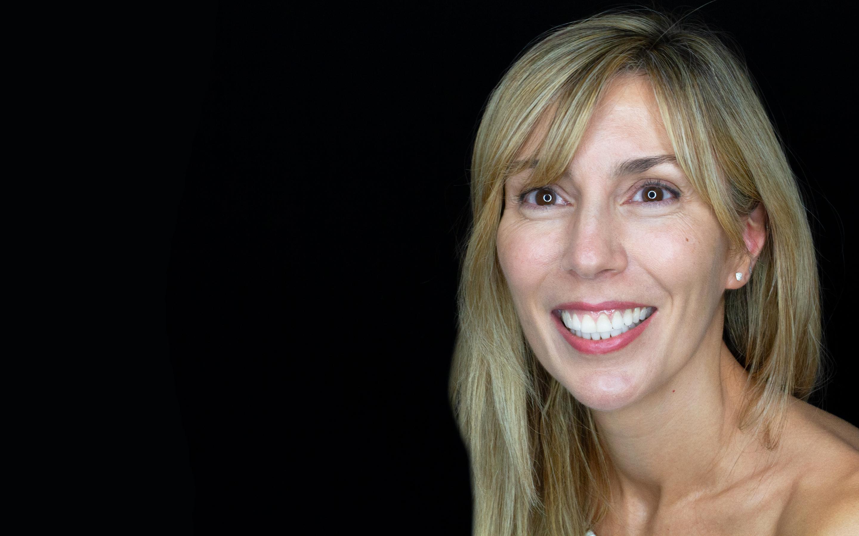 Caso antes y después de ortodoncia con Invisalign