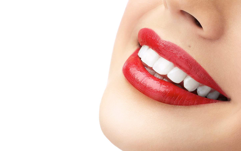 Clínica dental especializada en tratamiento de blanqueamiento en Madrid