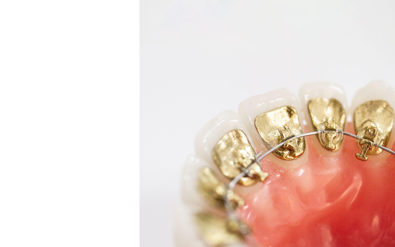 Clínica de ortodoncia con brackets linguales Incognito en Madrid