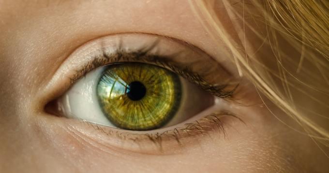 Nainen meni sairaalaan turvonneen silmän vuoksi - lääkärit löysivät jotain ennenäkemättömän ällöttävää