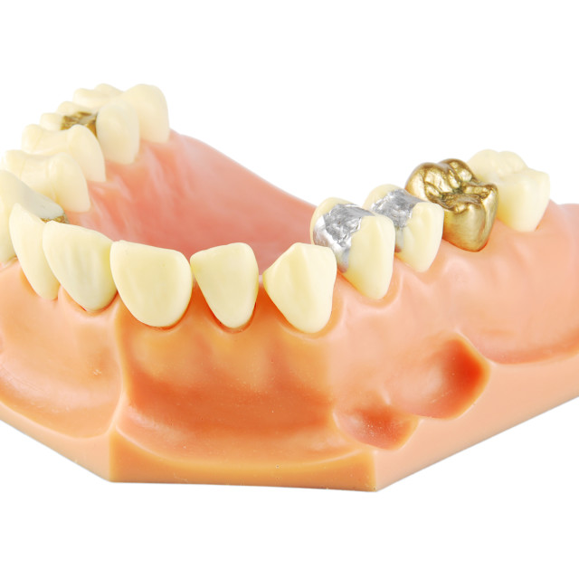 """Dental model"" stock image"