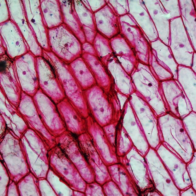 """""""Onion epidermus micrograph"""" stock image"""