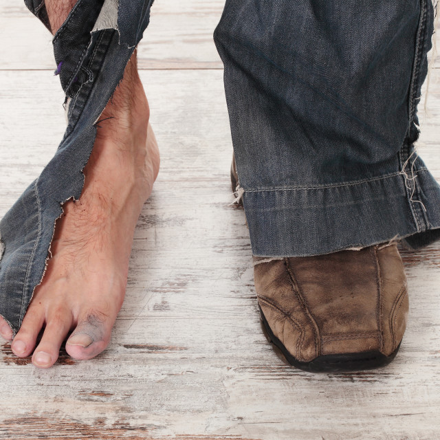 """""""poor feets"""" stock image"""