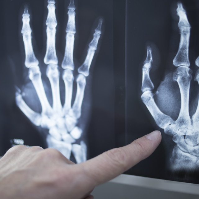 """Medical doctor pointing at radiograph x-ray image"" stock image"
