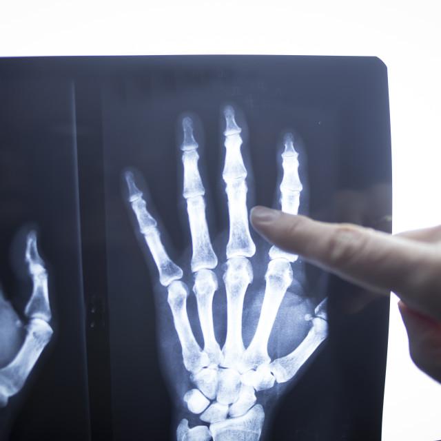 """Medical doctor pointing at radiograph x-ray image"" stock image"