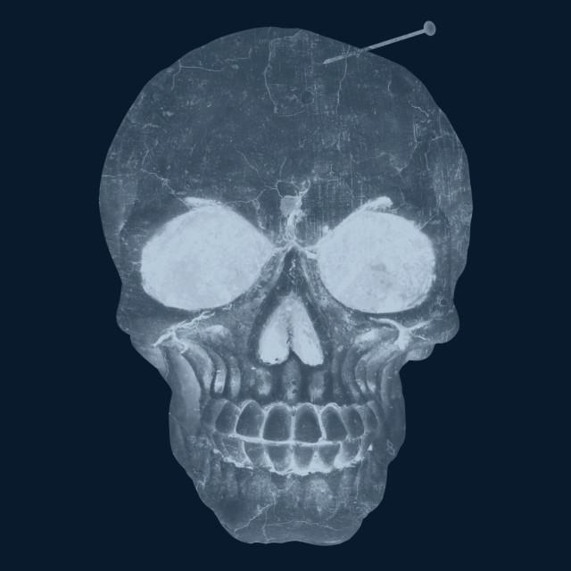 """human skull hurt"" stock image"
