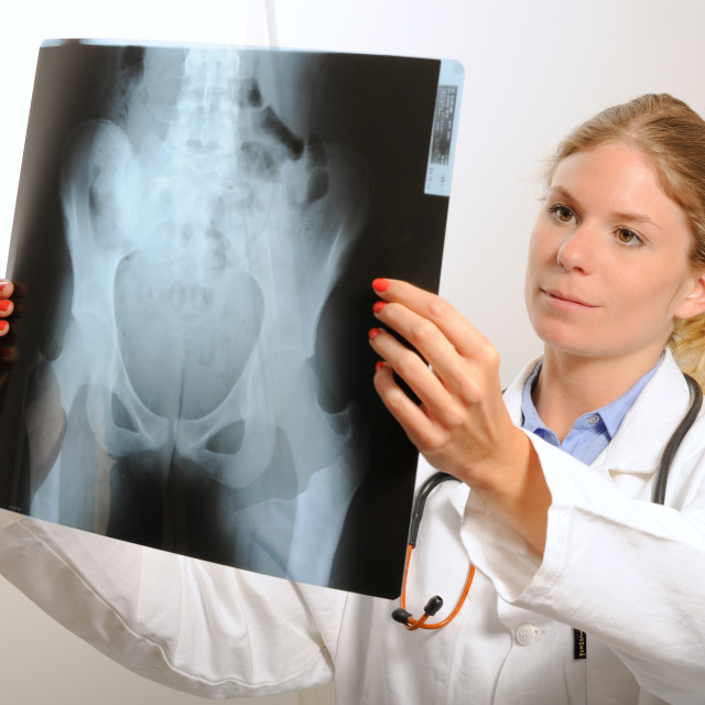 """Female doctor examining an x-ray image"" stock image"