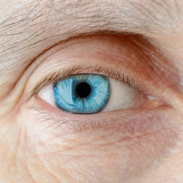 """Contact Lens on the Eye"" stock image"