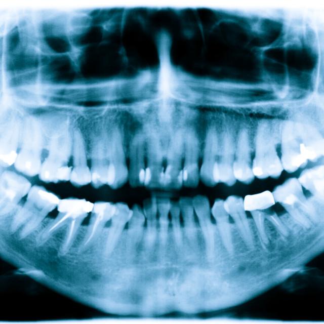 """Teeth x-ray image"" stock image"