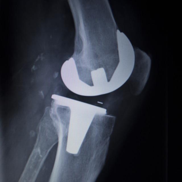 """X-ray orthopedics scan of knee meniscus implant prosthetics"" stock image"