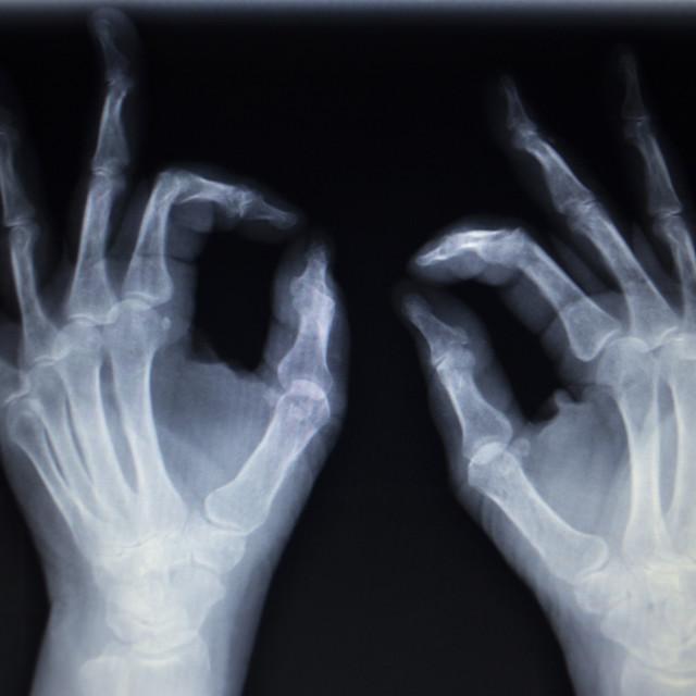 """X-ray orthopedics Traumatology scan of hand finger injury"" stock image"