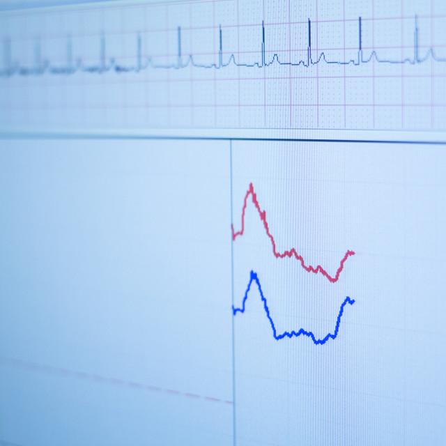 """Sports performance fitness endurance evaluation test gas analysis"" stock image"