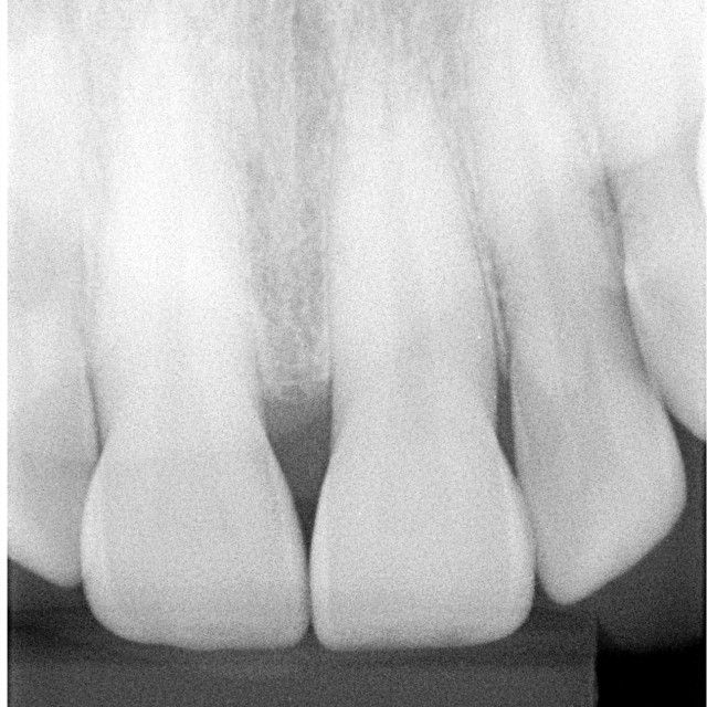 """X-ray of front teeth"" stock image"
