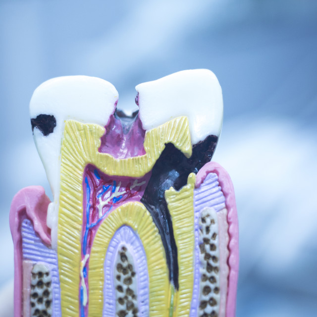 """Dental tooth model cast showing decay enamel roots"" stock image"