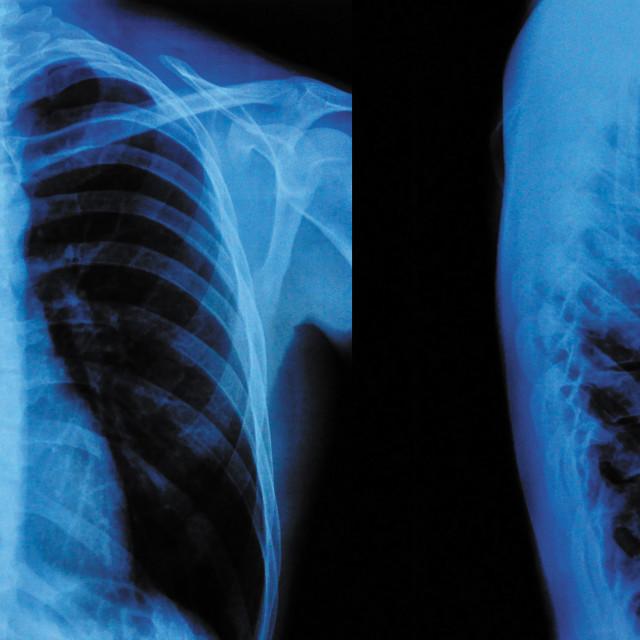 """X-Ray"" stock image"