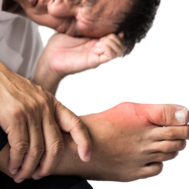 """Man with painful and inflamed gout on his foot around the big toe area."" stock image"