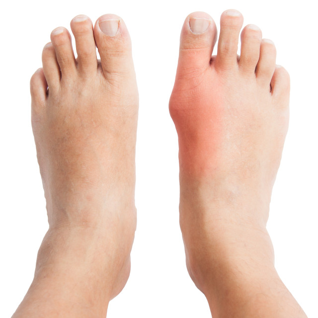 """""""Painful gout on foot joint"""" stock image"""