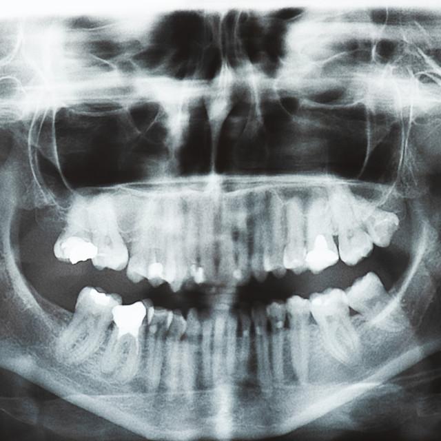 """""""Jaw dental pantomogram image"""" stock image"""