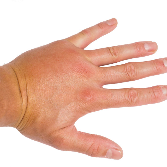 """Male person showing swollen knuckles on left hand isolated on white"" stock image"