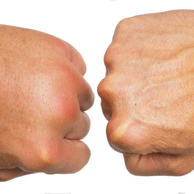 """Comparing swollen male hands isolated towards white background"" stock image"