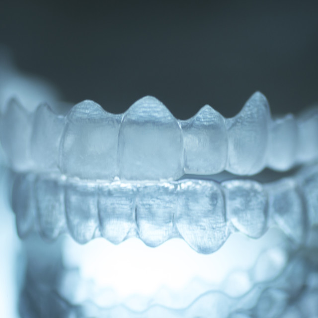 """Invisible dental teeth brackets aligners braces retainers"" stock image"