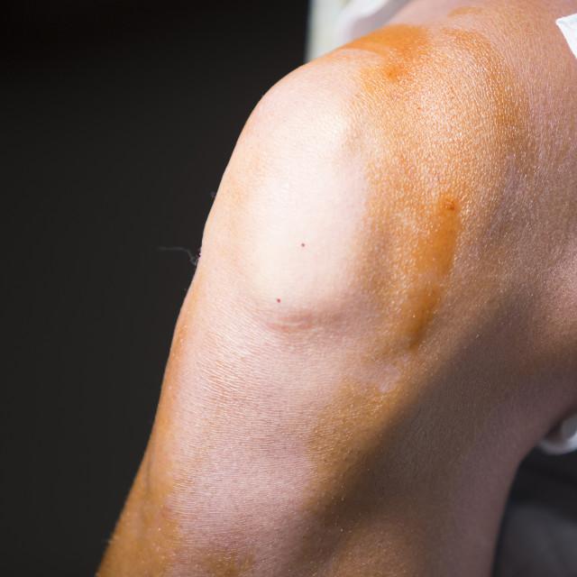 """Traumatology orthopedic surgery knee arthroscopy"" stock image"
