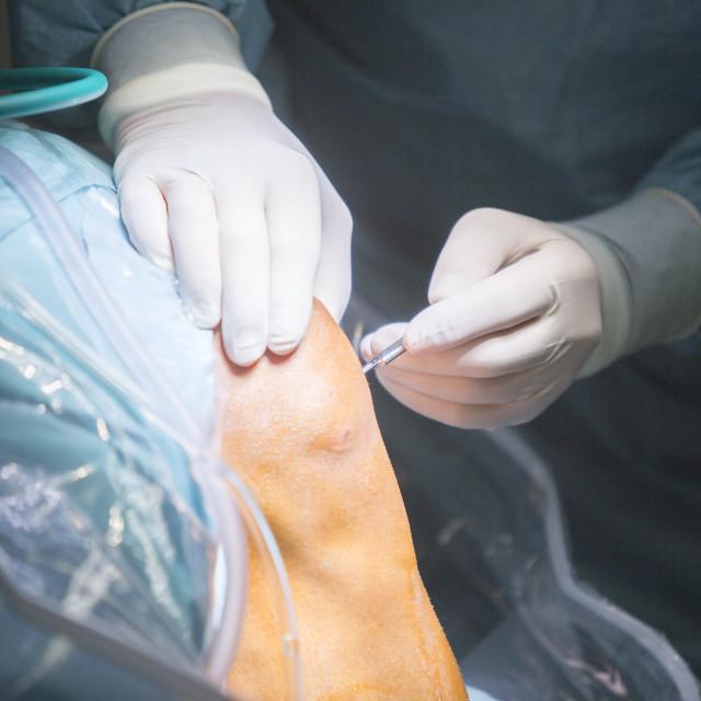 """Traumatology orthopedic surgery knee arthroscopy drip"" stock image"