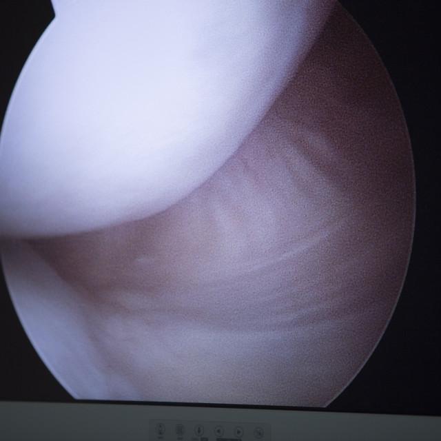 """""""Traumatology orthopedic surgery arthroscopy image knee"""" stock image"""