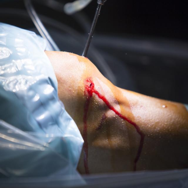 """Arthroscopy orthopedic surgery knee arthroscope probe"" stock image"