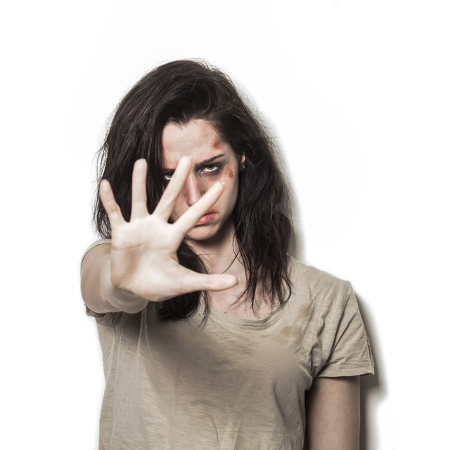 """Beaten up girl asking to stop with strong look"" stock image"