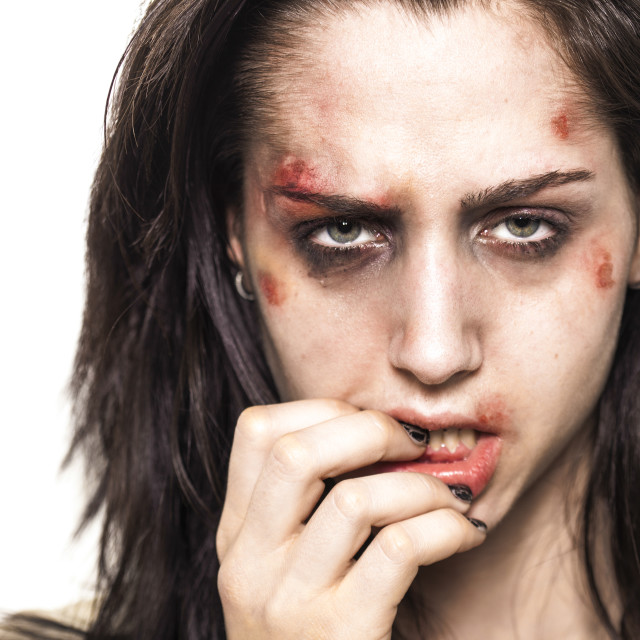 """Beaten up girl with deep look"" stock image"