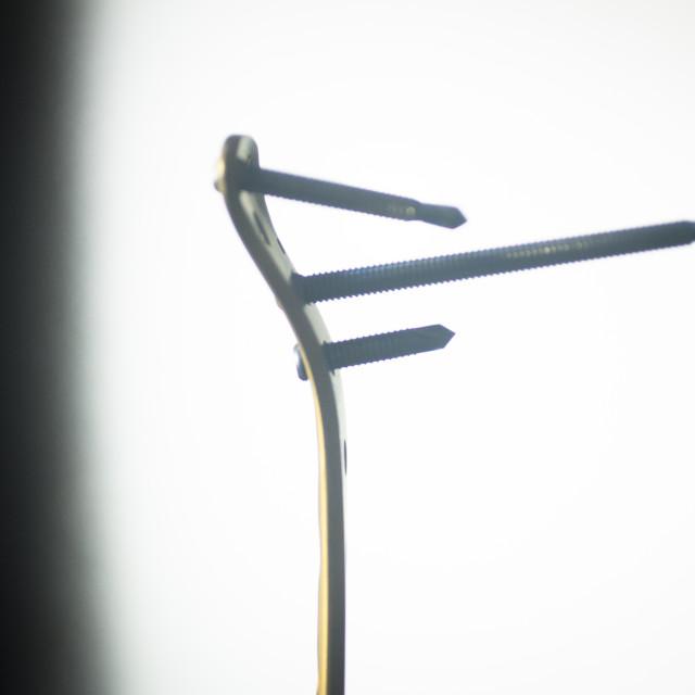 """""""Traumatology orthopedic surgery implant plate screws"""" stock image"""