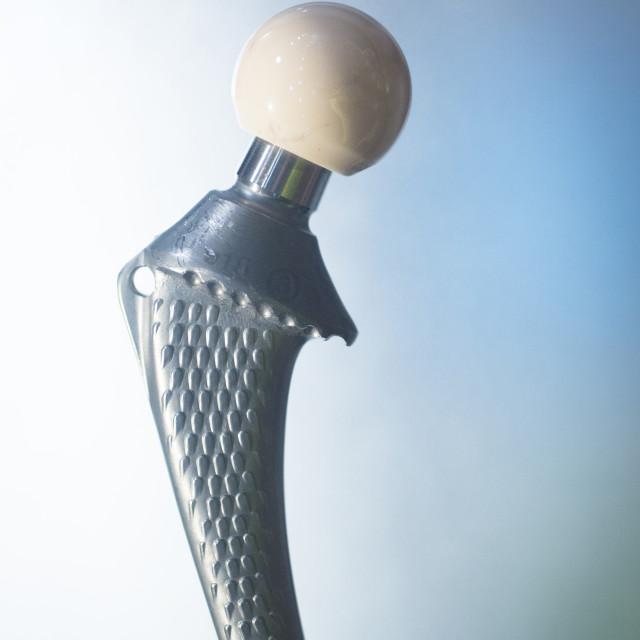 """""""Traumatology orthopedic surgery hip implant"""" stock image"""