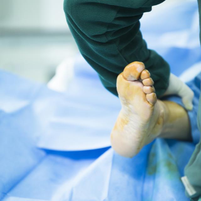 """Hospital operating room medical surgery operation"" stock image"
