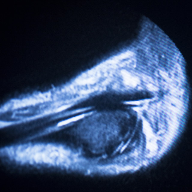 """MRI magnetic resonance imaging ankle scan"" stock image"