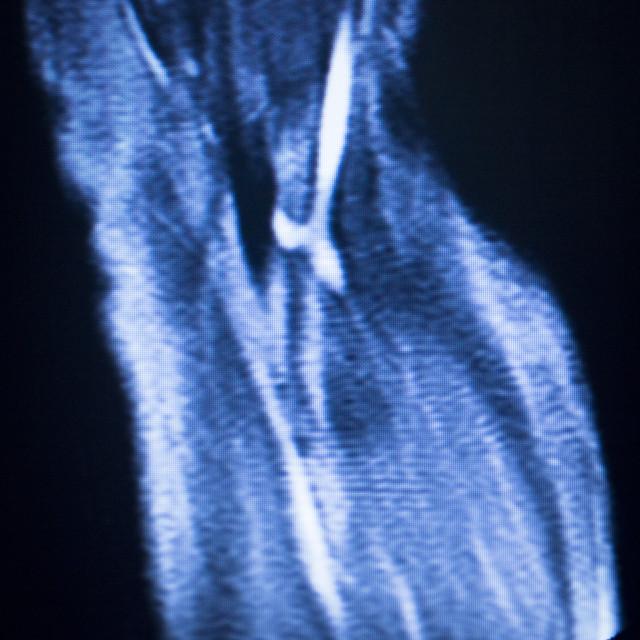 """MRI magnetic resonance imaging elbow arm scan"" stock image"