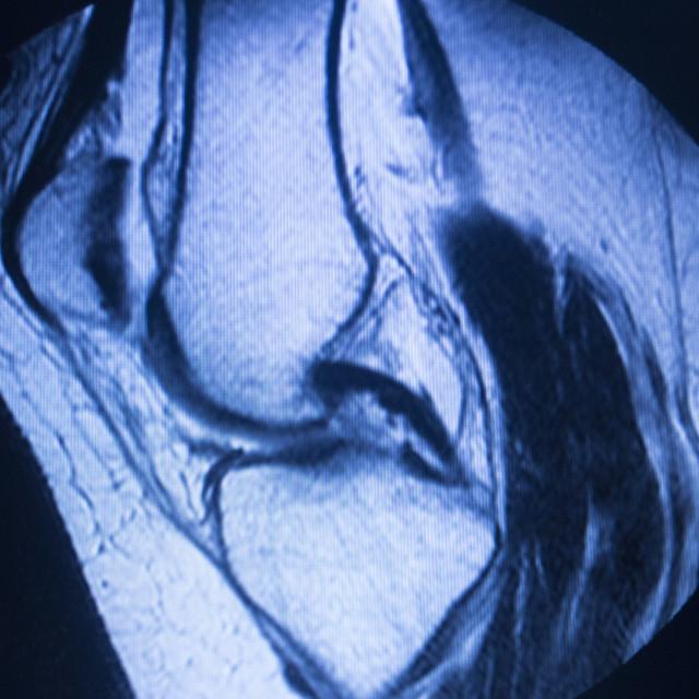 """MRI magnetic resonance imaging medical scan"" stock image"