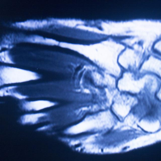 """""""MRI magnetic resonance imaging hand finger scan"""" stock image"""