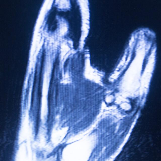 """MRI magnetic resonance imaging hand carpal scan"" stock image"