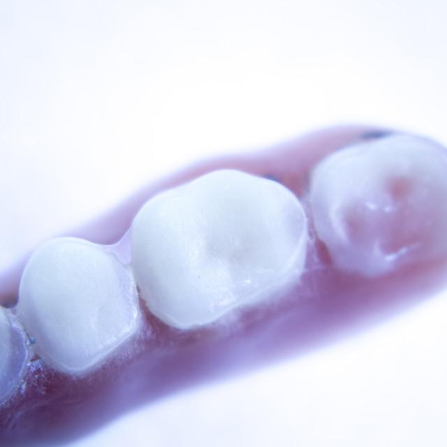 """Prosthetic dental partial dentures"" stock image"