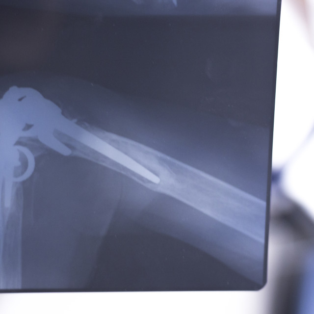 """""""Surgical implant arm elbow xray test scan"""" stock image"""