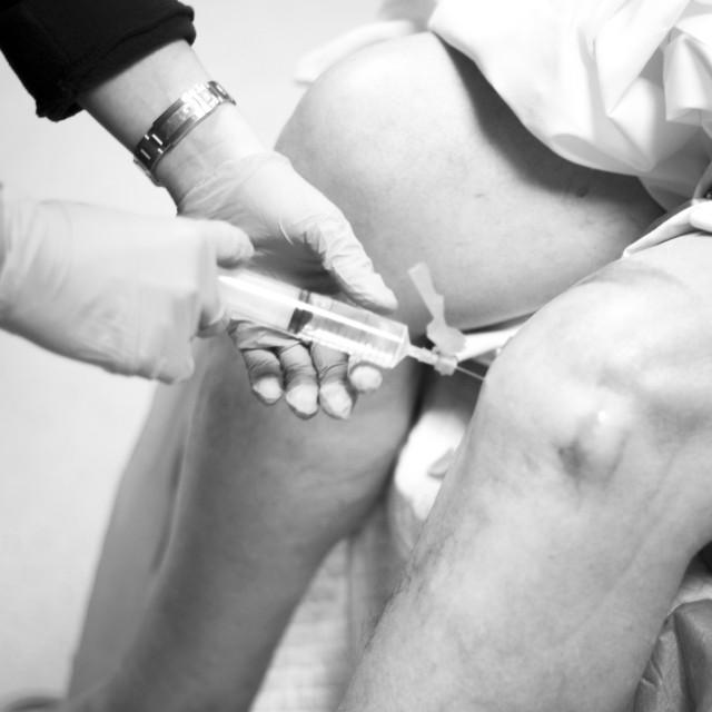 """Knee arthroscopy orthopedic surgery operation"" stock image"