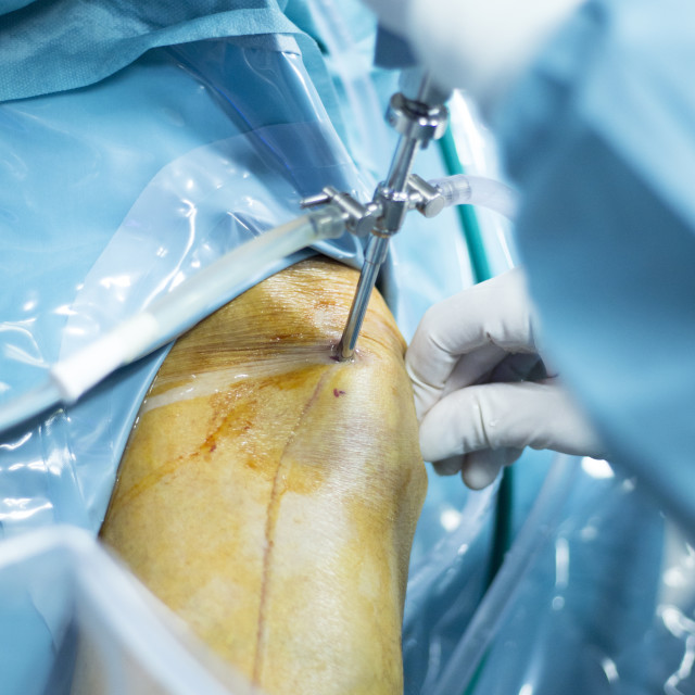 """Knee arthroscopy orthopedic surgery operation"" stock image"