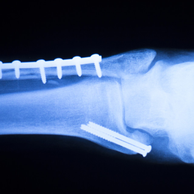 """Foot ankle and shin xray scan"" stock image"