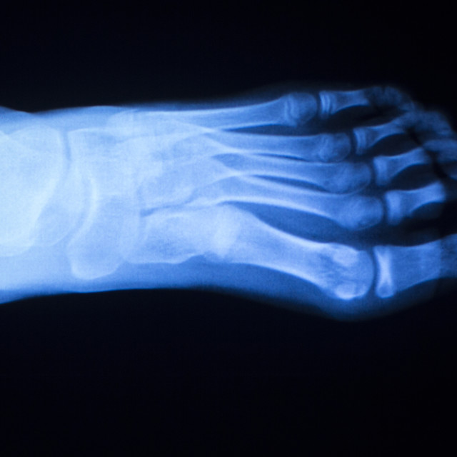 """Foot and toes injury x-ray scan"" stock image"