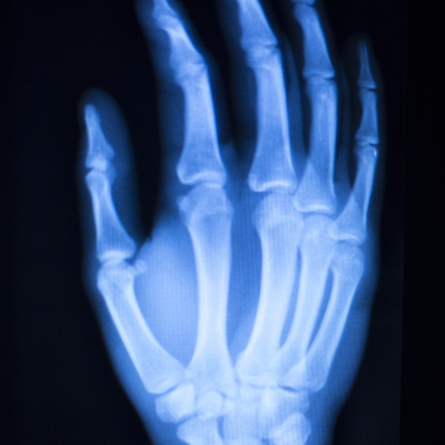 """Hand finger thumb hospital xray scan"" stock image"