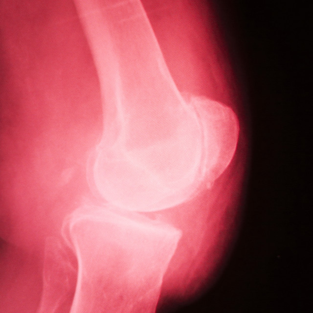"""Knee joint meniscus x-ray test scan"" stock image"