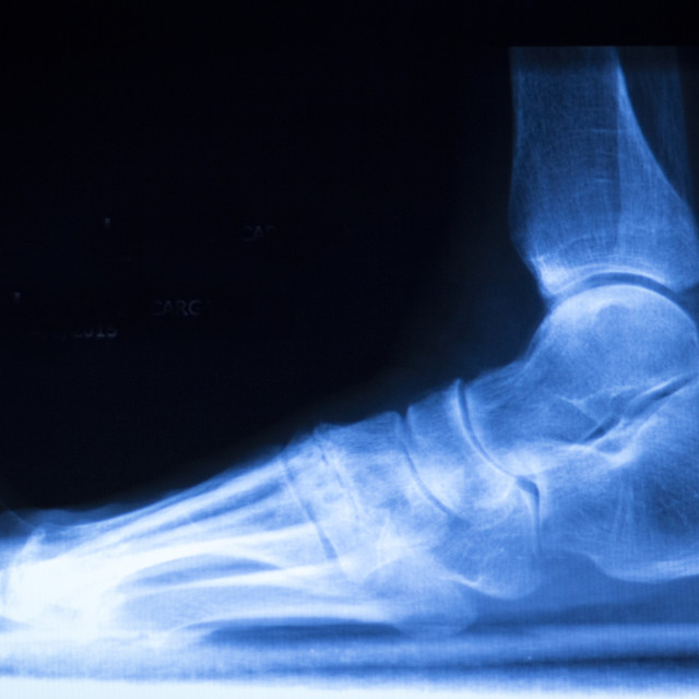"""""""Foot and toes injury x-ray scan"""" stock image"""