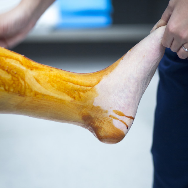 """Sterilizing leg for orthopedic knee surgery"" stock image"